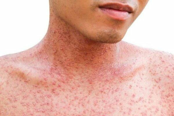 Stark County adult becomes first measles case confirmed in OH of 2019
